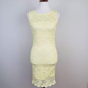 Forever 21 Lace Scallop Hem Dress